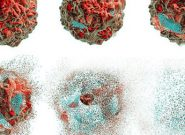 افزایش ابتلا به سرطان مقعد در آمریکا