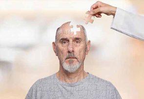 کمک نانومولکولها به درمان آلزایمر و پارکینسون